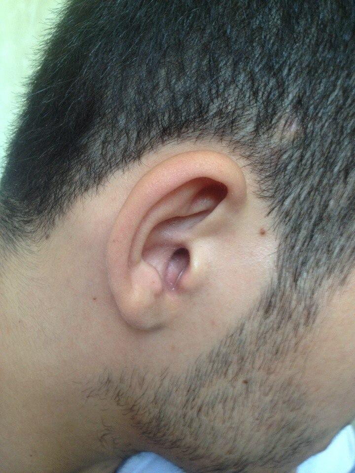 микронаушник в смуглом ухе