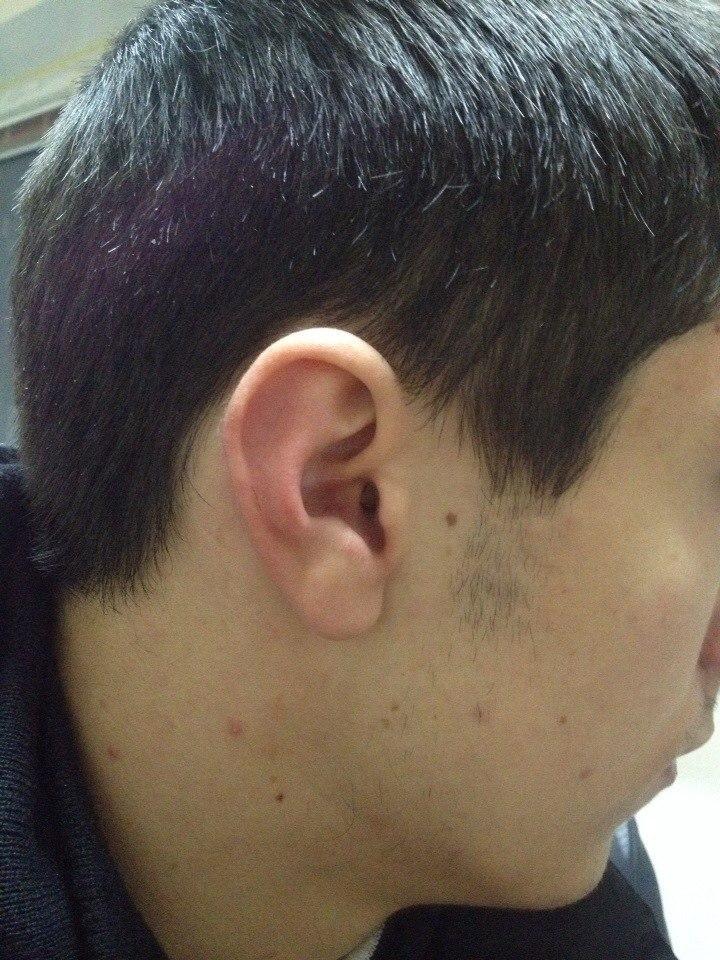 микронаушник в ухе профиль