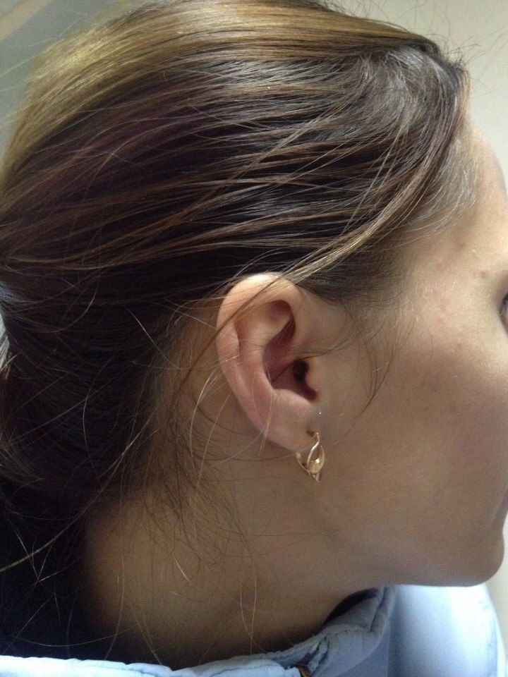 как микронаушник смотриться в ухе