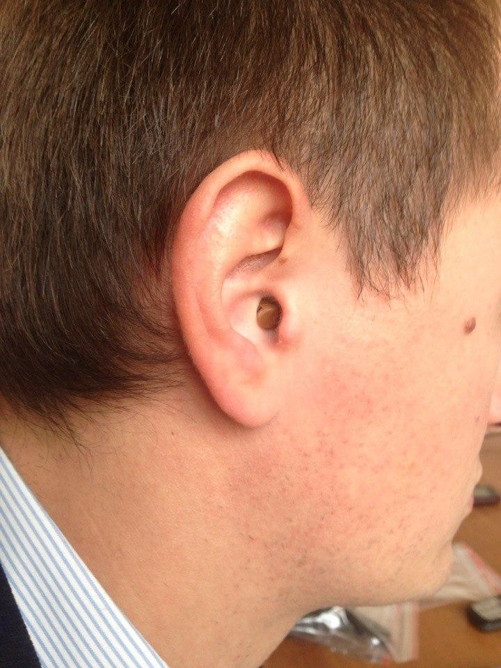 Микронаушник 11 мм в ухе