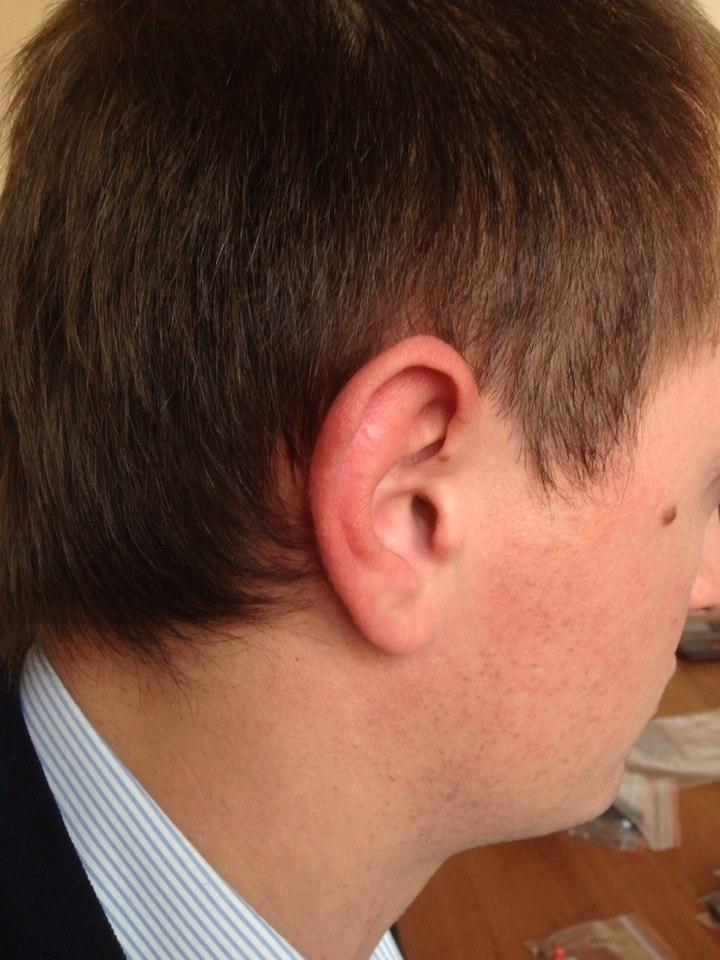Микронаушник 6 мм в ухе