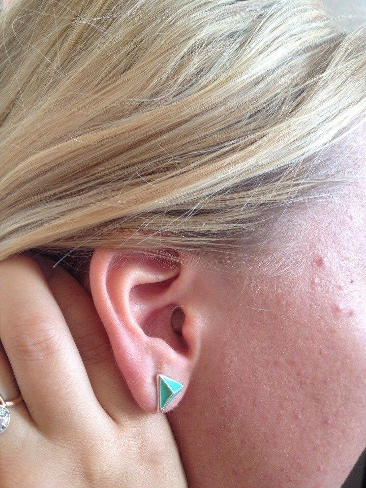 размещение микронаушника в ухе