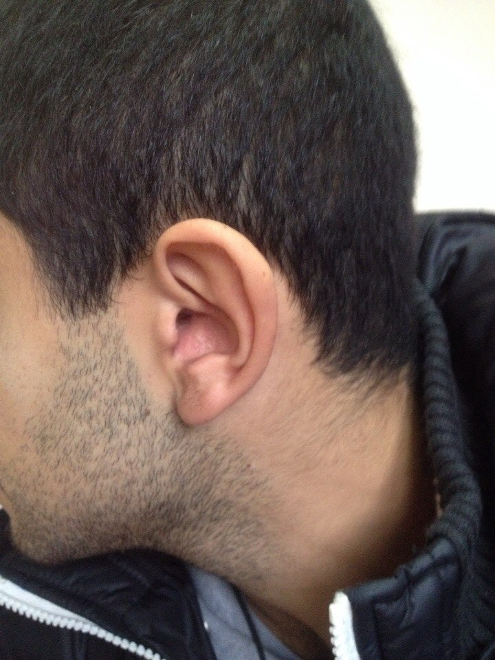 микронаушник мне в ухо