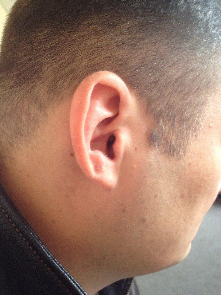 расположение микронаушника в ухе