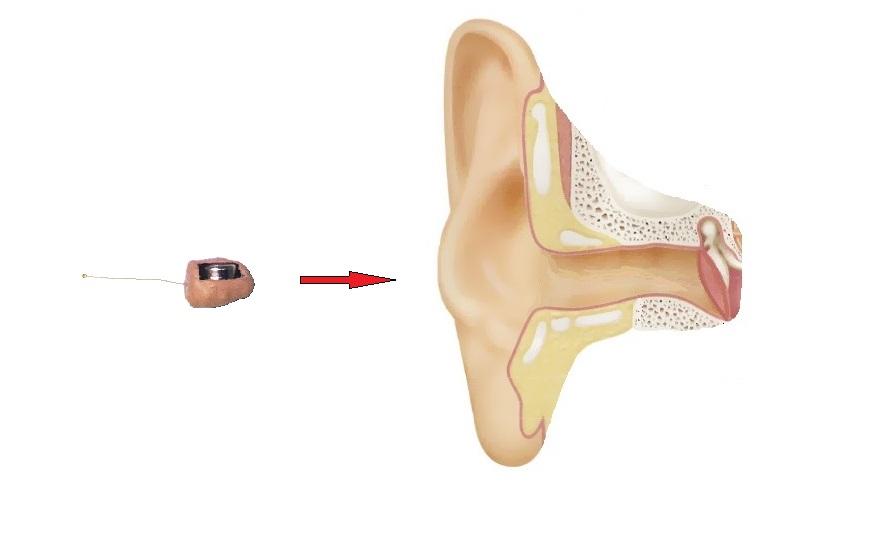6 мм микронаушник в ухе