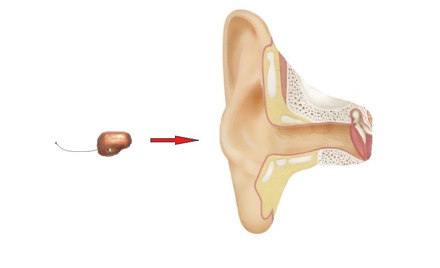 8 мм микронаушник в ухе